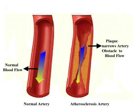 Cholesterol Arteries